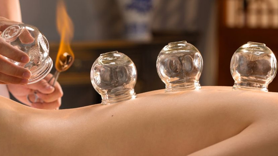 Cupping Therapy Worcester